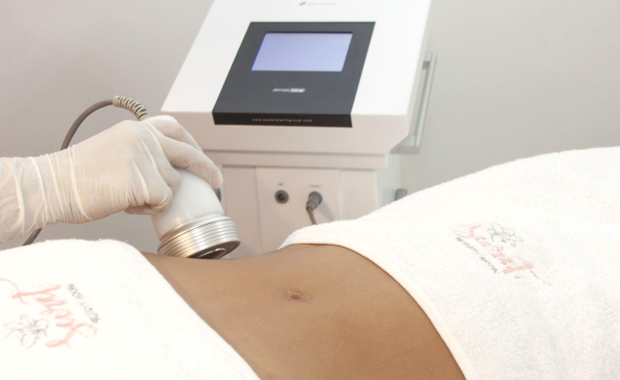 Secret-Beauty-Room-Tratamiento-MICRONEEDLING